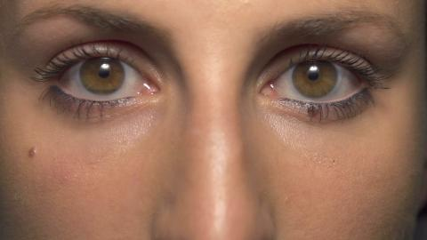 Embedded thumbnail for Nina Tandon '12 on Using Digital Fabrication for Facial Repair